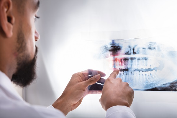 General Dentistry: Why Do I Need X Rays?